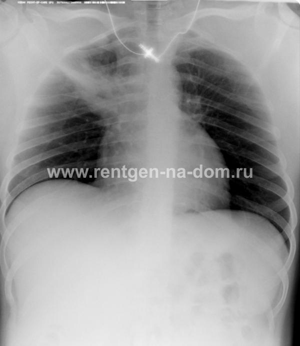 Толстушка посетила врача гинеколога и показала на камеру